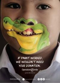 operation-smile-enfant-fente-labiale-maquillage-crocodile